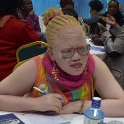 A woman with albinism talks at a table