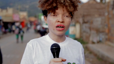 A Woman with albinism speaks into a microphone